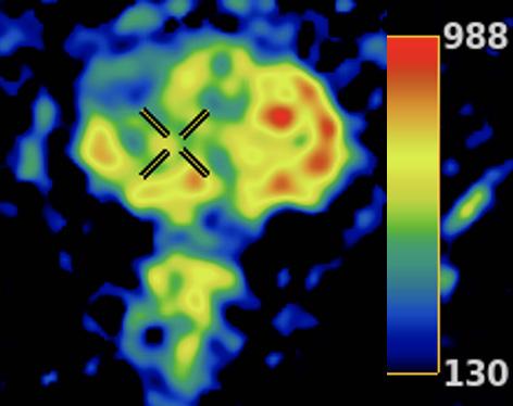 Figura 3. Mapa ADC Color: cada color corresponde a un valor ADC diferente. Esta representación puede ser más conspicua que la representación en escala de grises.