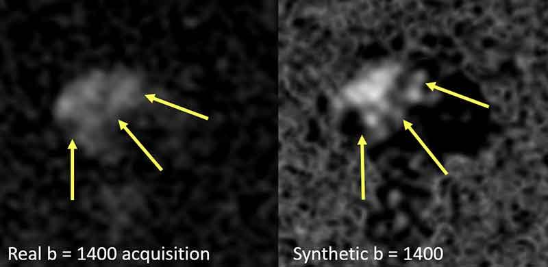Figura 4. Comparación de impagen b=1400 s/mm2 adquirida (izquierda) versus imagen sintética b =1400 s/mm2